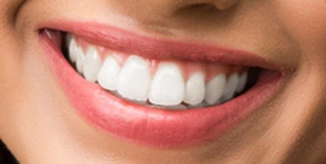 teeth brightening closeup CC