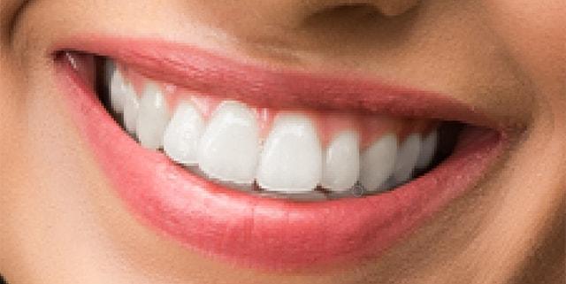 whiten teeth brush opacity