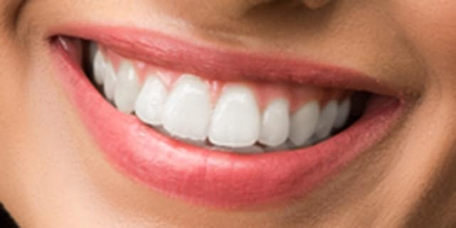 There are areas around the teeth which is brightened.