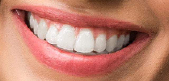whiten teeth cleanup lower lip