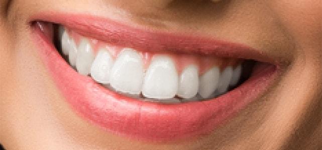 whiten teeth cleanup upper lip