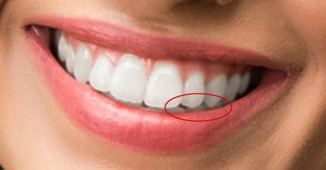 whiten teeth problem area
